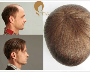 Full Lace Base Remy 100% Human Hair Men′s Toupee