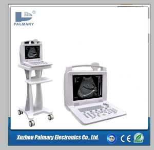 2D Bw Medical Ultrasound Machine for Sale/Ultrasound Portable pictures & photos