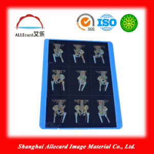 Pet Medical Dry Laser Medical Film pictures & photos