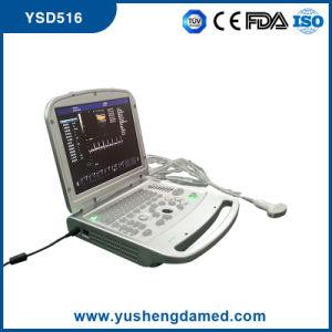 Ysd516 Digital 3D/4D Digital Laptop Color Doppler Ultraound Scanner pictures & photos