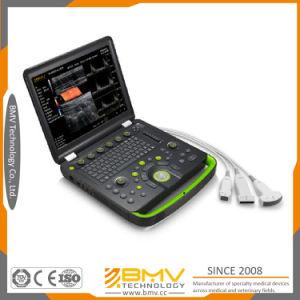 Laptop Ultrasound Scanner Equipment Trolley Ultrasound Machine (bcu60) pictures & photos
