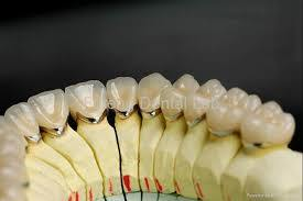 Dental Lab Pfm Crown and Bridge From China Dental Lab pictures & photos