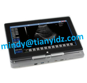 12inch Laptop PC USB Ultrasound Scanner pictures & photos