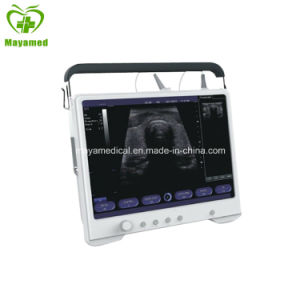 My-A012 15 Inch LCD Portable Ultrasound Scanner pictures & photos