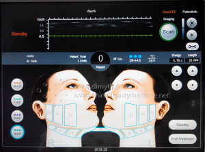 USA Technology Portable Wrinkle Removal Hifu Skin Care pictures & photos