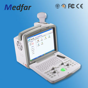 Full Digital Portable Ultrasound Scanner/Probe/Healthcare pictures & photos