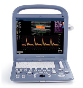 Best 4D Color Doppler Medical Ultrasound Scan Machine pictures & photos