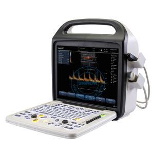 Veterinary Color Doppler System (DopScan 1000V) pictures & photos