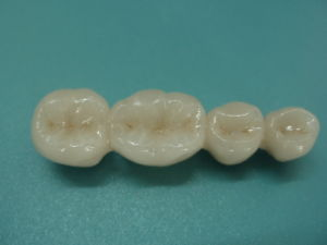 Denture Cocr Porcelain Fused to Metal Crowns pictures & photos