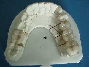 Dental Civ /Lm 3/4 Non-Precious Porcelain Crowns pictures & photos