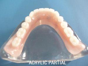 Good Biocomputilily Natural and Beautiful Acrylic Resin Denture pictures & photos
