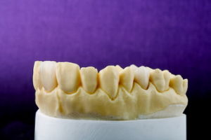 Emax Veneer From China Dental Lab pictures & photos