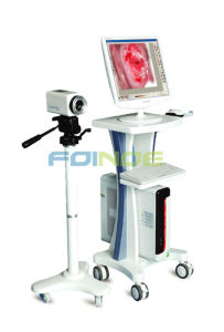 Widely Used Digital Video Electronic Colposcope for Gynecology with CE Mark pictures & photos