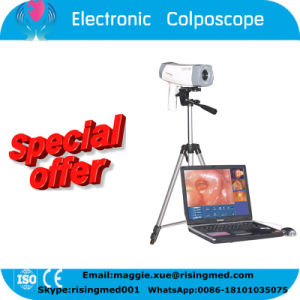Ce ISO Mark Digital Electronic Colposcope pictures & photos