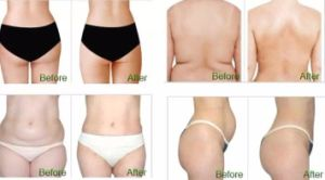 Multifunctional Platform Body Slimming Machine pictures & photos