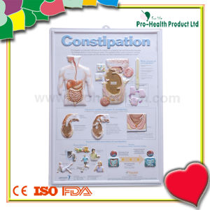 Constipation Patient Embossed Plastic Medical Chart pictures & photos