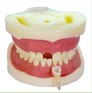 TM-E14 Root Canal Model for Dental Teaching pictures & photos
