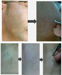 Diode Laser Hair Removal 808nm with Ce Approved pictures & photos