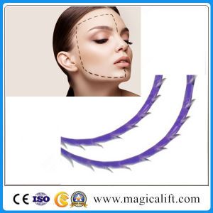 Magicalift 2016 Hot Face Lifting 3D Pdo Thread Lift pictures & photos