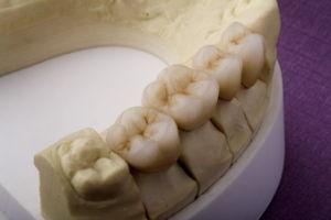 Dental Titanium Alloy Porcelain Crown Could Customized pictures & photos