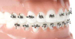 High Quality Orthodontic Alexander Brackets with CE ISO FDA pictures & photos