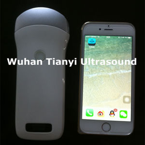 Small and Light Wireless Ultrasound Scanner to iPad iPhone pictures & photos