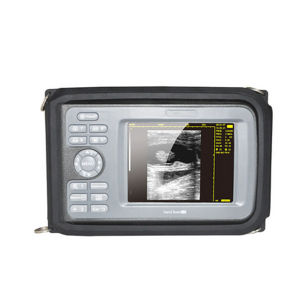 Cheap Price Handheld Portable Ultrasound Scanner with 5.5 Inches pictures & photos