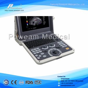 Portable Ultrasound Scanner Color Doppler pictures & photos