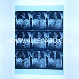 Blue Radio Film pictures & photos