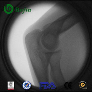 Orthopedic Low Radiation Equipment Xray (BJI-1J) pictures & photos