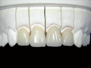 Dental All Ceramic Crown From China Dental Lab pictures & photos