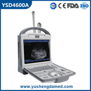Medical/ Hospital Equipment Portable B/W Ultrasound Scanner for Human pictures & photos