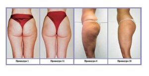 Sincoheren Ce Certified Body Slimming Fat Removal Aesthetic Equipment V8 pictures & photos