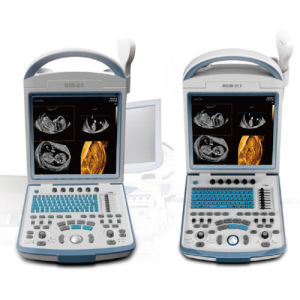 Ce Medical Device Full Digital Diagnosis System Ultrasound Scanner Ysd4600 pictures & photos
