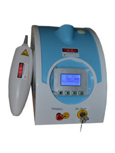 Q switch ND: YAG laser tattoo removal