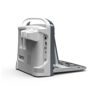 Medical Equipment Portable Digital Ultrasound Scanner pictures & photos