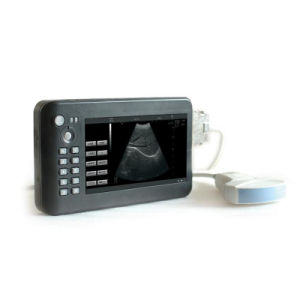 Hand-Carried Digital Ultrasound Scanner with CE (CX6100A) pictures & photos
