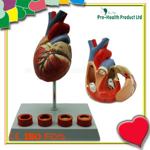 Atherosclerosis Plastic Human Heart Model pictures & photos