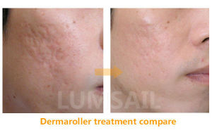 Super Effective Dermaroller for Reducing Cellulite pictures & photos