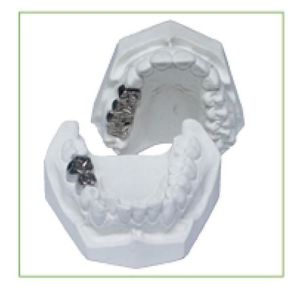TM-F6 Casting Crown Model for Dental Teaching pictures & photos