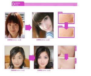 Yanhee Whitening Cream Acne/Blemish Control Scar Removal Acne Remover Cream pictures & photos