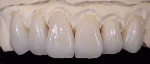 Ivoclar Porcelain Outside with Metal Inside Crowns pictures & photos