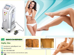 FDA, Tga, Tga Professional 808nm Diode Laser Permanent Hair Removal pictures & photos