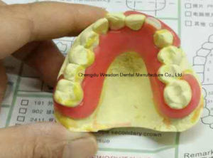 Valplast Denture for Dental Lab From Chinese Dental Lab pictures & photos