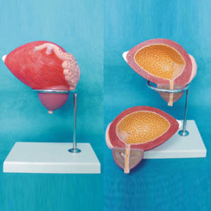 Human Bladder Enlarged Medical Anatomical Model (R110306) pictures & photos