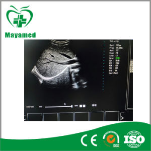 My-A034b Promotion Medical 2D/3D/4D Trolley Color Doppler Ultrasound Scanner for Hot Sale pictures & photos