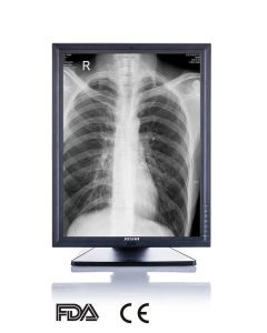 3MP 21-Inch 2048X1536 LED Screen Monochrome Monitor, CE, FDA Approved, Veterinary X Ray Equipment pictures & photos