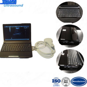 10.1 Inch Full Digital Laptop Ultrasound Scanner with Convex Probe pictures & photos