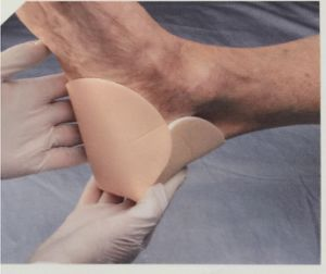 CE FDA Highly Absorbent Self Adherent Heel Silicone Foam Dressing pictures & photos