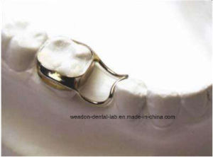 Space Retainer From Chinese Dental pictures & photos